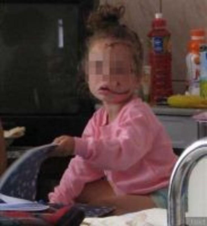Pies oszpecił 3-letnią dziewczynkę
