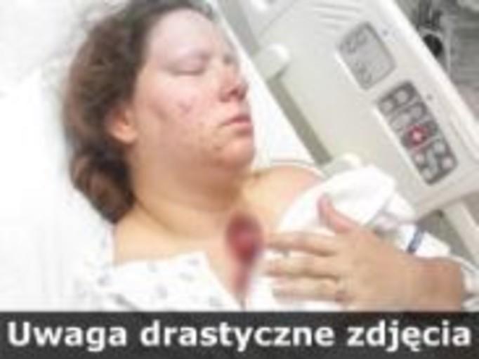 Matka przetrzymuje martwy płód!