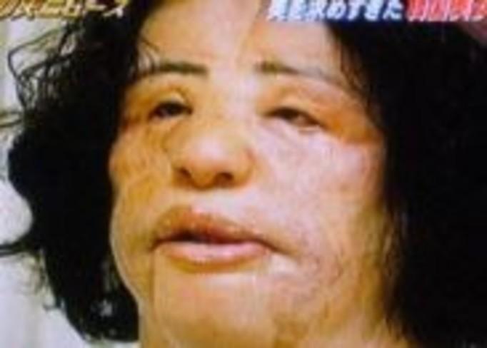 Zrobiła sobie domową operację plastyczną!