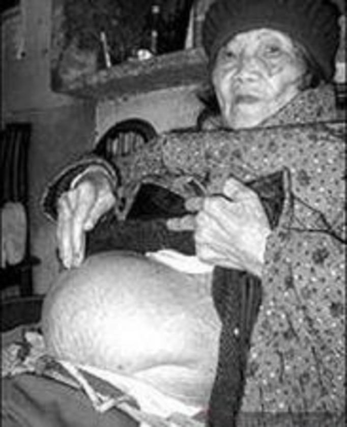 Była w ciąży przez 60 lat!