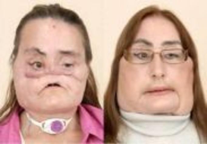 Dzięki chirurgom odzyskała twarz!