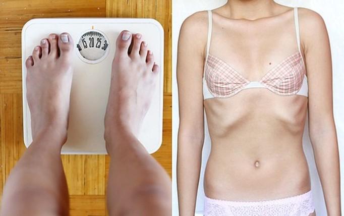 Анорексия диета голод скелет