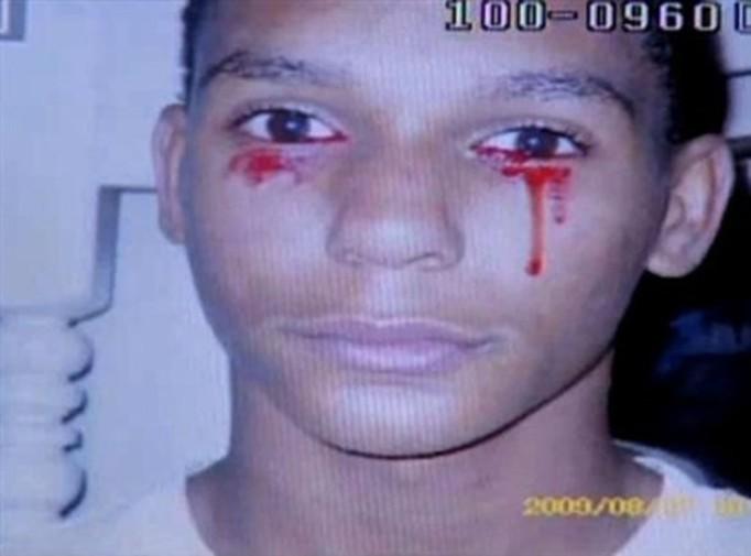 Medyczna zagadka: Płacze krwią! VIDEO