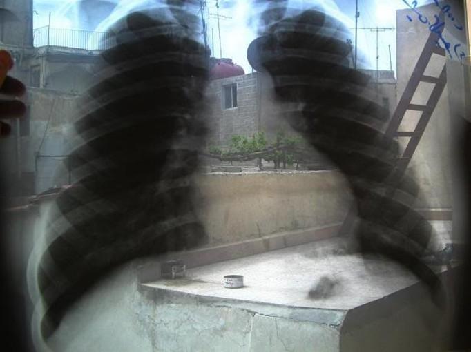 Przeszczepiono mu płuca z rakiem!