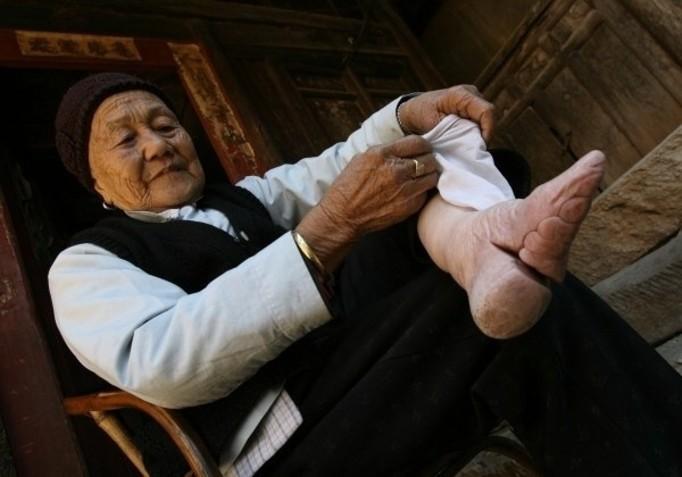 W dzieciństwie krępowano jej stopy. Zobacz szokującą deformację!