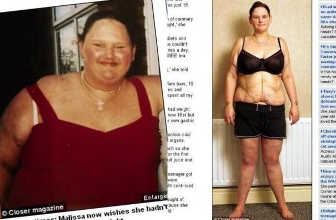 Schudła 139 kilogramów i znowu chce być gruba!