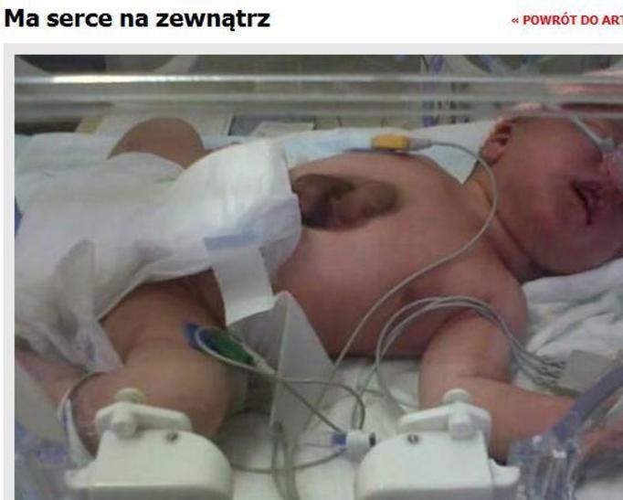 Urodziła się dziewczynka z sercem na brzuchu!