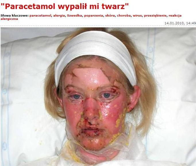 Lek przeciwbólowy wypalił jej twarz!