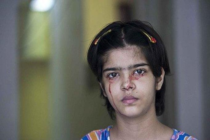 14-letnia dziewczynka płacze krwią! Szokujące zjawisko!