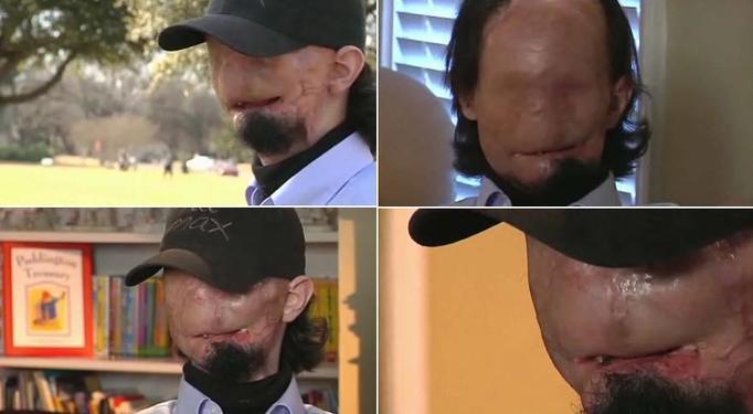 Dallas Wiens, transplantacja twarzy