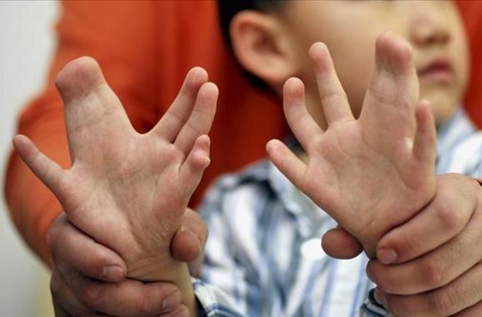 chłopiec z sześcioma palcami