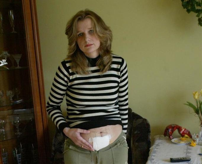 Lekarze zaszyli jej chustę w brzuchu!