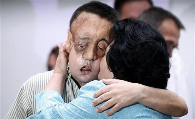 Przeszczepili mu twarz! ZDJĘCIA