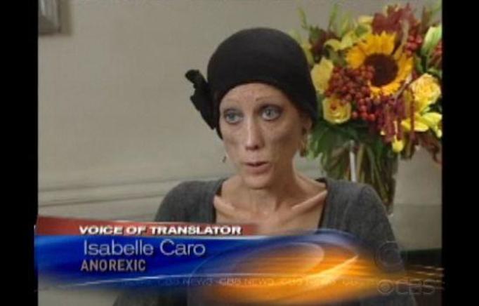 VIDEO NA DZIŚ: Wywiad z najpopularniejszą anorektyczką świata
