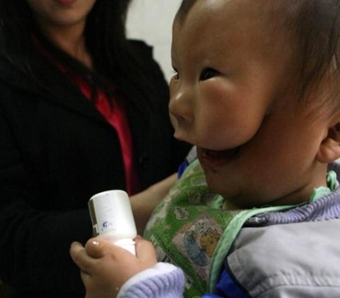 Niemowlę z rozszczepioną twarzą – dramat chłopca i jego mamy!