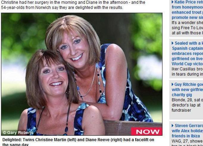 54-letnie bliźniaczki wszystko robią razem!
