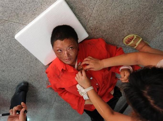 Mąż oblał jej twarz kwasem! Zobacz zdjęcia!