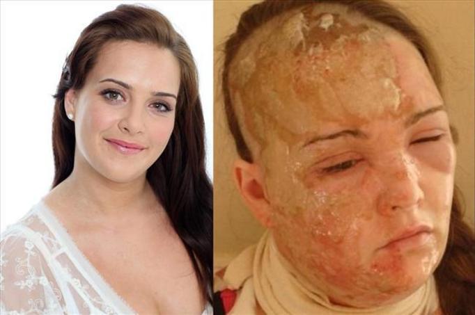 21-letnia dziewczyna odzyskała twarz! Zobacz!