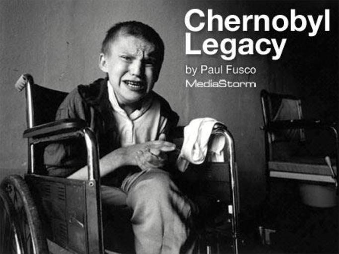 Dzieci Czarnobyla - wstrząsające zdjęcia ofiar katastrofy