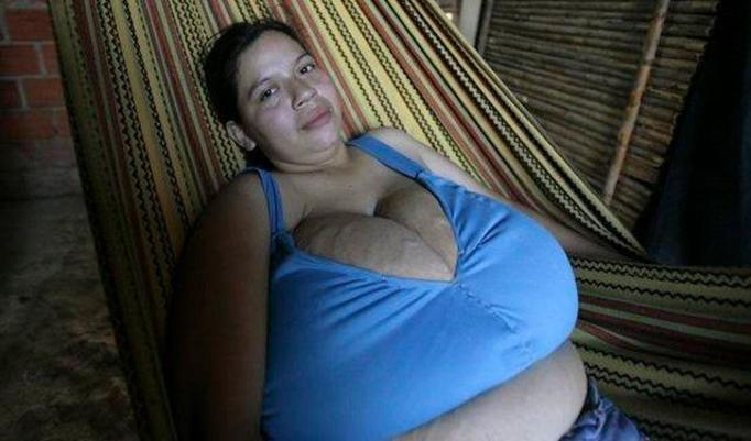 GIGANTOMASTIA: Olbrzymie piersi urosły jej w kilka miesięcy!