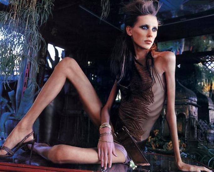 Najchudsze modelki świata – GALERIA!