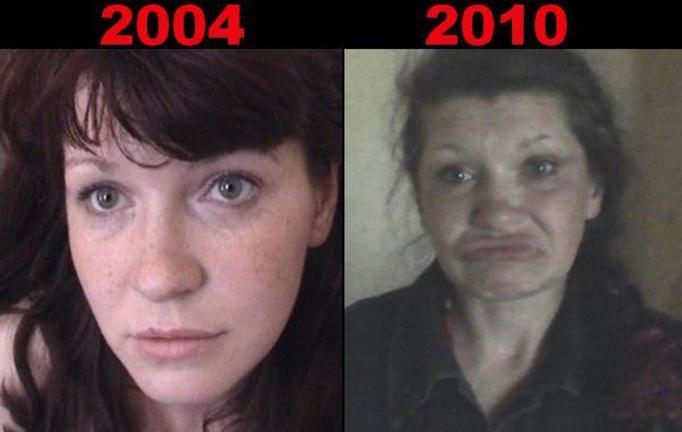 Jak narkotyki zmieniają twarz? FOTOSZOK!