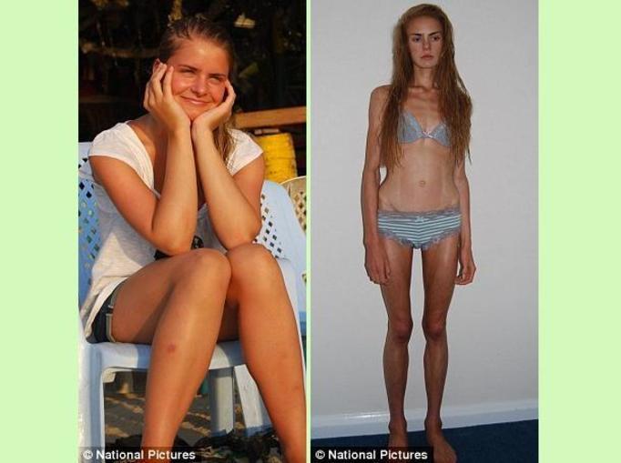 16-letnia anorektyczka zmarła po roku odchudzania!