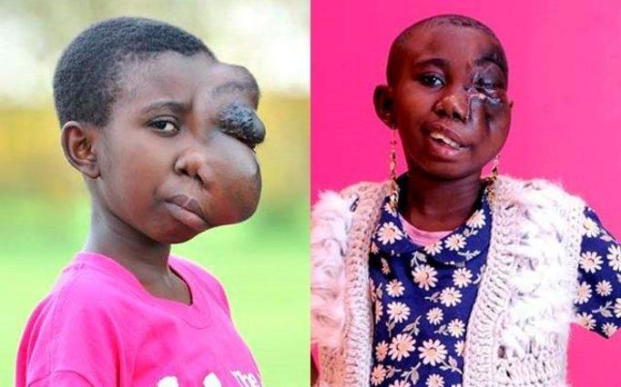 Ogromny guz przez wiele lat zniekształcał jej twarz! Teraz 13-latka wróci do normalnego życia