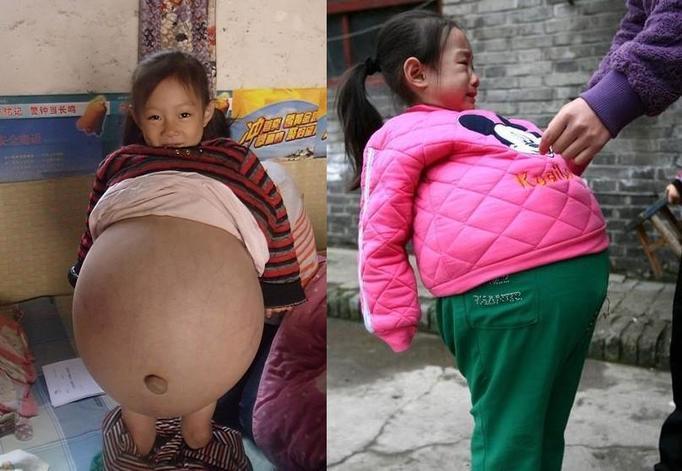 4-letnia dziewczynka z wielkim brzuchem! Zobacz zdjęcia!