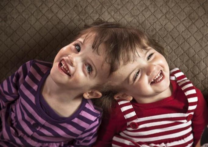 Siostry syjamskie z Kanady: Mają wspólny mózg, odczytują swoje myśli!