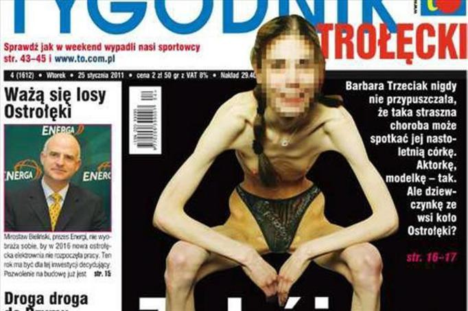 Małgosia z Ostrołęki: Ma 15 lat, a waży 40 kg! GŁODZIŁA SIĘ OD 12-EGO ROKU ŻYCIA!