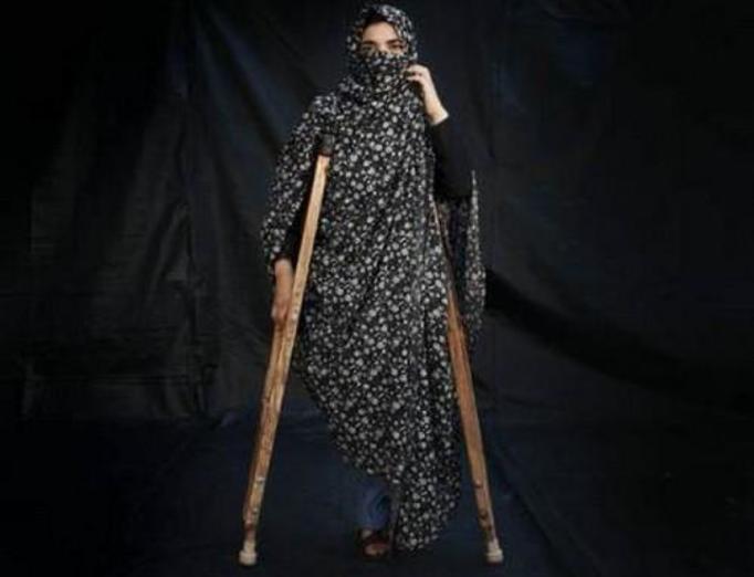 Afganistan: Ofiary min przeciwpiechotnych – DRAMATYCZNE ZDJĘCIA