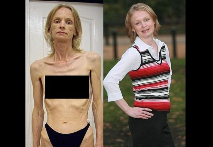 Samantha Smith: 38-latka, która wygrała walkę z anoreksją – SZOKUJĄCE ZDJĘCIA