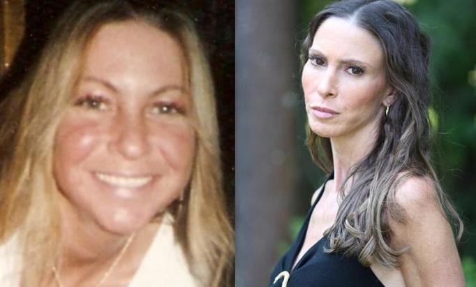 Laura Pillarella: Przeszła 15 operacji plastycznych, dzisiaj chciałaby cofnąć czas!