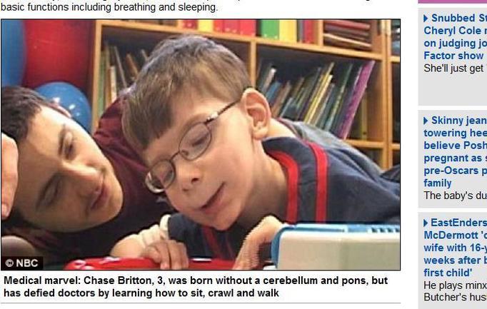 3-letni Chase Britton nie posiada części mózgu, a mimo to normalnie funkcjonuje! NIEWIARYGODNE!