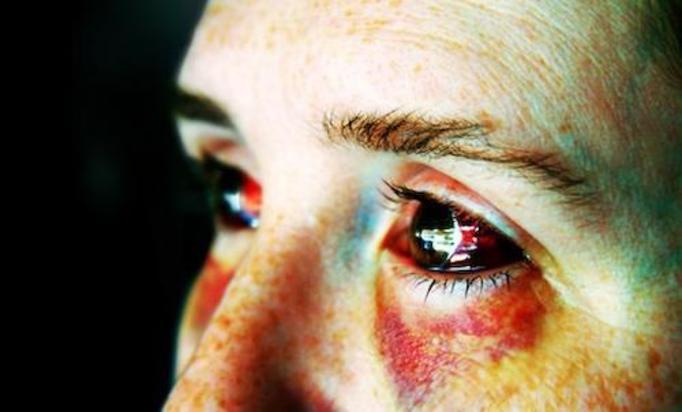 Koszmar w Warszawie: 18-latka była przypalana żelazkiem, kaleczona nożem i bita po twarzy kluczem!
