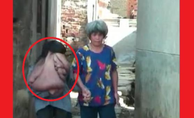 FILM, KTÓRY WSTRZĄSNĄŁ ŚWIATEM: 31-latek ma na twarzy ponad 20-kilogramowy guz!