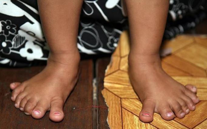 Lei Yadi Min: Dziewczynka z Birmy urodziła się z 26 palcami!