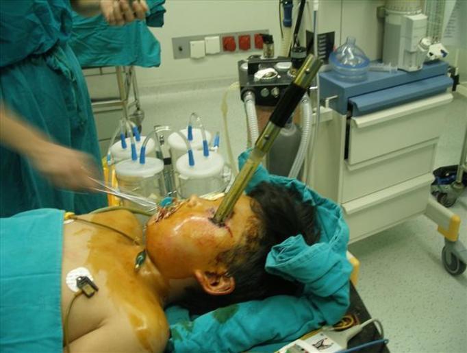TRAGICZNY WYPADEK: 13-letni Chińczyk wbił sobie nóż w twarz! Jak do tego doszło?