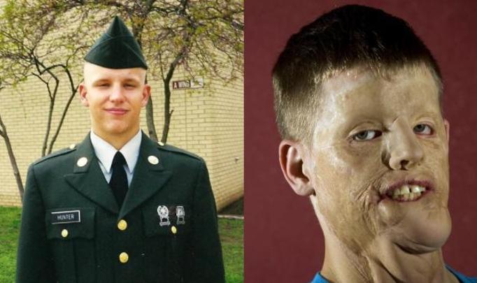 30-letni Mitch Hunter: Stracił twarz, nogę i rękę, ratując czyjeś życie! BOHATER BEZ TWARZY CZEKA NA OPERACJĘ