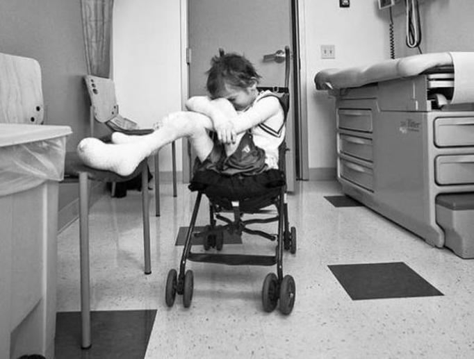 Garrett Spaulding: Nastolatek, który cierpi na pęcherzowe oddzielanie się naskórka. Nie może normalnie żyć!