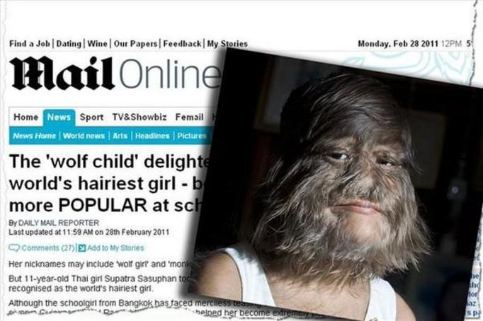 Supatra Sasuphan: 11-latka z owłosioną twarzą! Ma SYNDROM WILKOŁAKA!