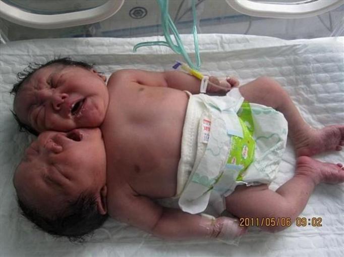 bliźniaczki syjamskie z Chin