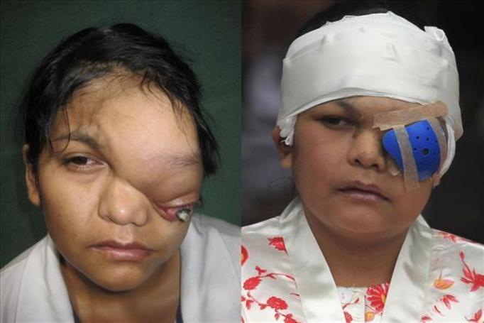 nowotwór oka
