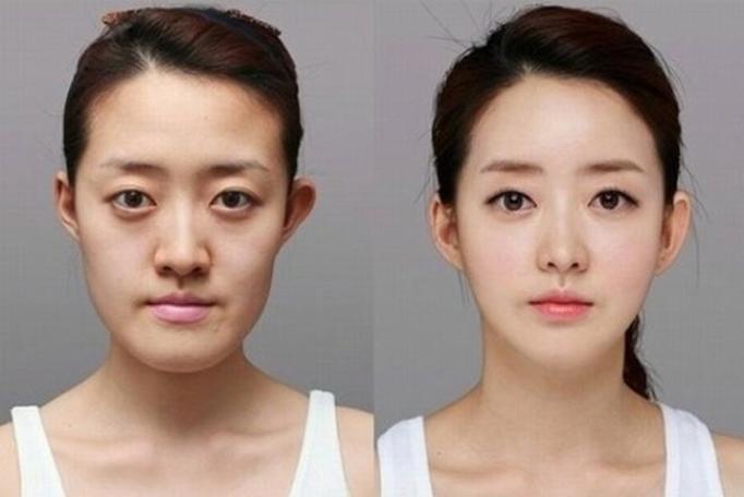 Koreanki po operacjach plastycznych