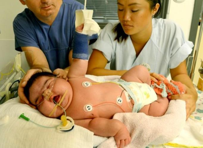 wielki noworodek