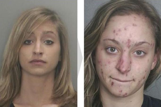 Tak narkotyki niszczą ludzką twarz