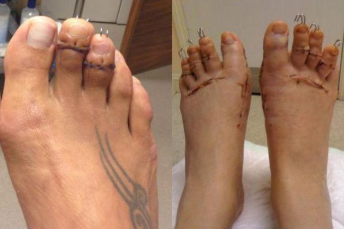 operacja plastyczna stóp