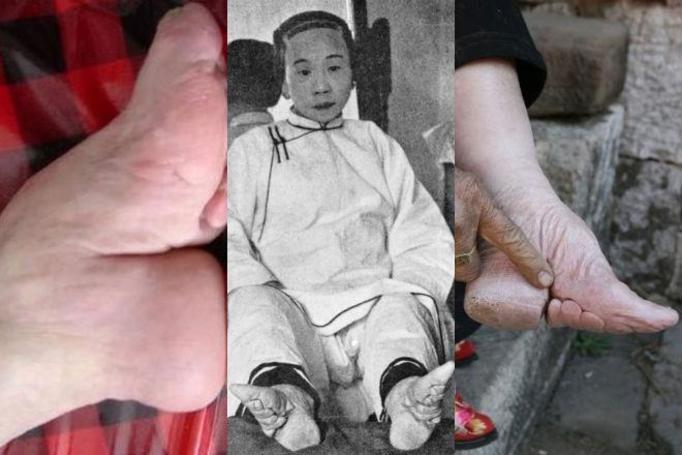Krępowanie stóp
