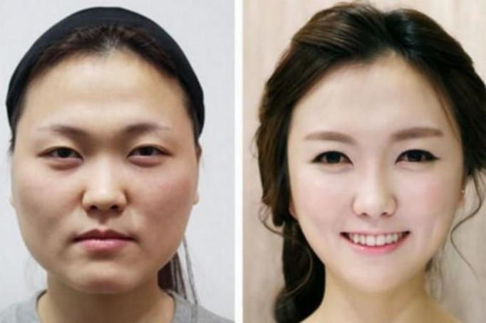 Operacje plastyczne - zdjęcia PRZED i PO